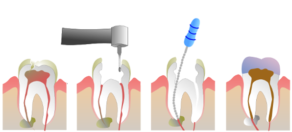 endodentistry